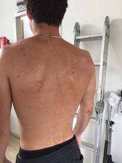 Acne behandeling orthomoleculair Purmerend, Beemster, Alkmaar