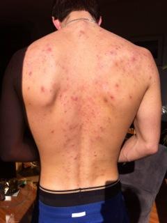 acne voor